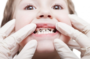CSP Spotlight: Five Ways to Prevent Kids' Tooth Decay